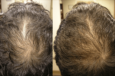 Landmark Hair Loss Clinic - Success Stories
