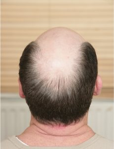 Landmark Hair Loss Clinic