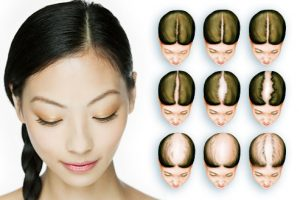 What causes female hair loss?
