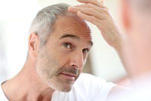 Senior man and hair loss issue