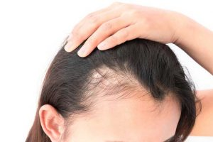 What is female hair loss?