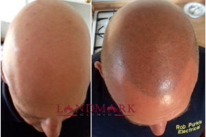 Rob - before and after hair transplant surgery