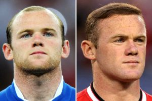 Wayne Rooney before after hair transplant