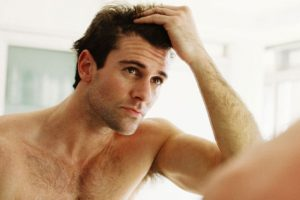 Can male hair loss be prevented?