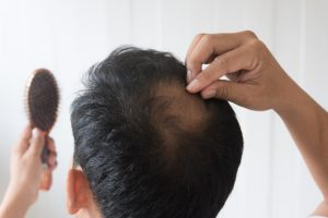 Non-Surgical Hair Loss Solutions